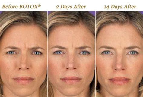 AAFE: American Academy of Facial Esthetics | Botox ...