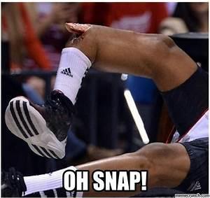Oh Snap Kevin Ware broken leg