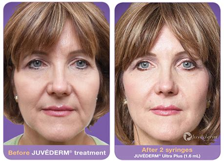 Juvederm XC | Treatment FAQ, Cost, Before & After
