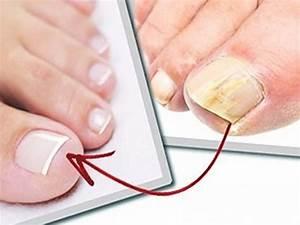 Как вылечить грибок ногтей на ногах в домашних условиях быстро чесноком