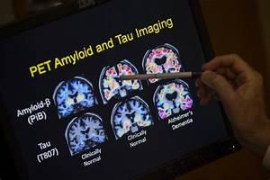 Dementia Tied To Hormone