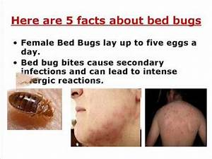 Where do bed bugs come from youtube for Bed bugs why do they come