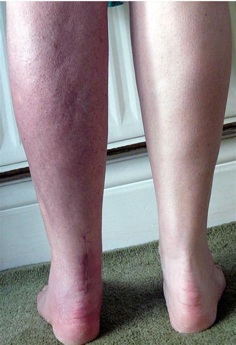My Funny Leg Anniehs Blog