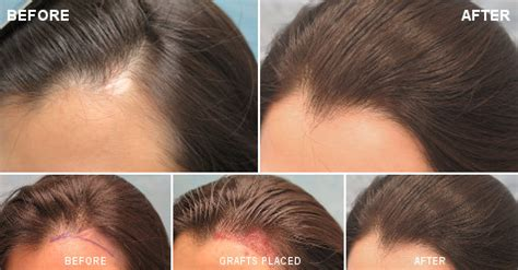 Hair Loss in Women   Female Hair Loss   Bernstein Medical