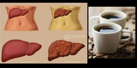 Coffee doesn't just keep you awake — it may also make you smarter. Drink Coffee To Reverse Liver Damage Caused By Alcohol