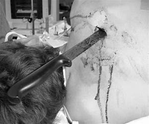 A Role For Video Assisted Thoracoscopy In Stable