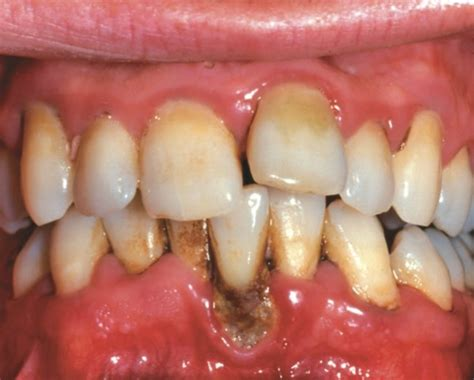 Gum Recession - How to Stop It and What Can Be Done - LA
