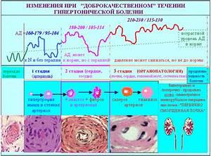 Индапамид при лечении гипертонической болезни