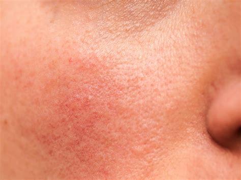 rosacea symptome behandlung