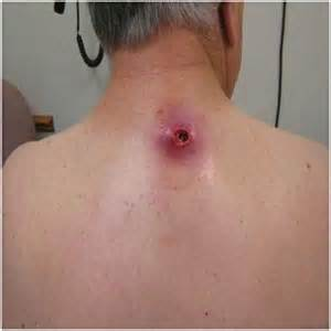 Benign ear cyst or tumor as related to Infection of the cysts - Pictures