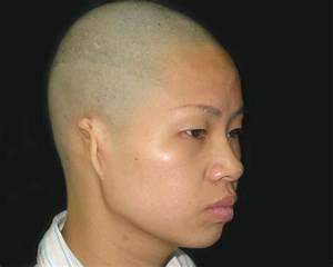 Overview Of Congenital Craniofacial Abnormalities
