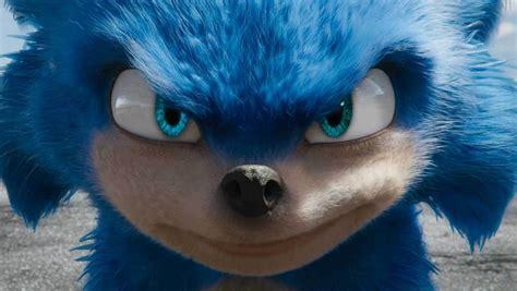 sonic  hedgehog  pushed    dental work