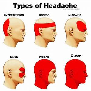 Different Types Of Headaches And Location