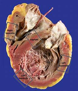 Heart Explant