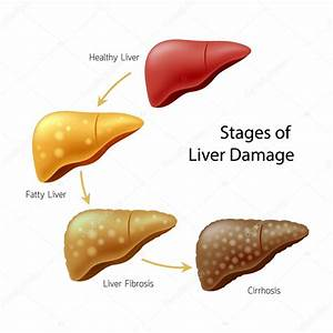 Stages Liver Damage Liver Disease Healthy Fatty Fibrosis