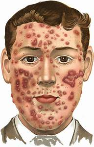 Can Live Bacteria Cure Acne  Episode 95