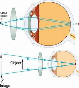 Vision Correction · Physics