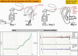 Errors Of The Acoustic Gain Prescribed Via Real