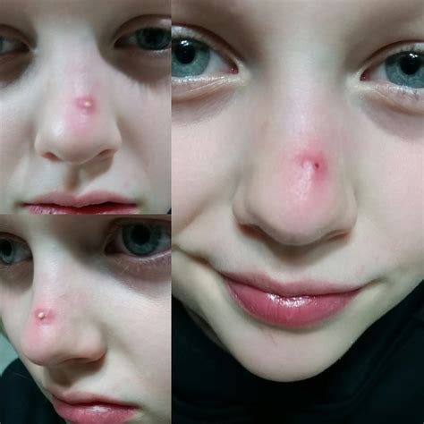 My 10 Year Old Daughter Had Her 1st Big Pimple And She