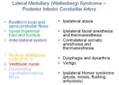 Review 6) Wallenberg And Other Vascular Brainstem. Horror Signs Of Stroke. Environment Signs Of Stroke. Bone Marrow Signs. Hospital Premise Signs. Doctor's Signs Of Stroke. Airport Delhi Signs. Song Disney Signs. Smoke Infographic Signs