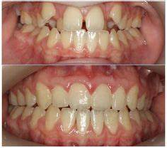 11 Best Before and After Orthodontic Pictures images ...