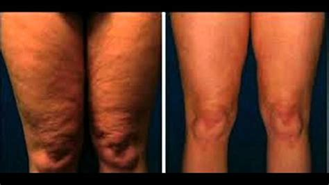 fast cellulite removal    youtube