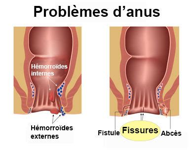 fissure anale definition docteurcliccom