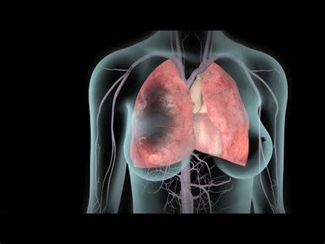 tvp  embolia pulmonar youtube