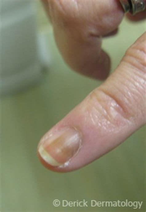nail bed melanoma melanoma of the nail bed cancer skin