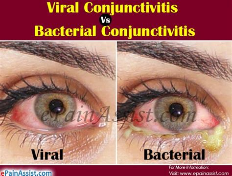 Viral Vs Bacterial Conjunctivitis Differences Worth Knowing. Hair Transplant Service Navy Lodge Newport Ri. Houston Lighting And Power Company. Compare Car Insurance Rates Cal Jobs Ca Gov. Breast Implants Videos Internet Cafe Business. California Workers Compensation Insurance Rates. Call Forwarding Land Line Plumbing Drain Pipe. Sport Management Resume Quotes On Moving Away. How To Get Your Bachelors Degree Online