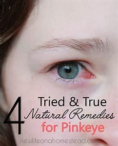 4 Tried U0026 True Natural Remedies For Pinkeye U2022 New Life On