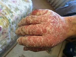 Цена лечения псориаза в санкт-петербурге
