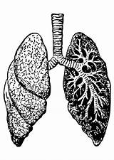 Lungs Coloring Mycoplasma Pages Unresponsive Chronic Asthma Printable Disease Pneumoniae sketch template