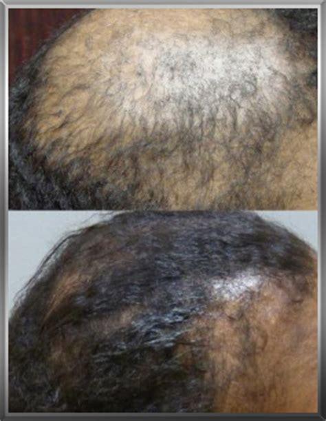 Hair Implants Palmetto Ga 30268 Hair Loss In Hair Restoration