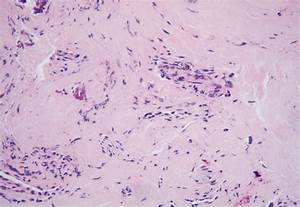 Histologically  The Hemorrhagic Ganglion Cyst Is Composed