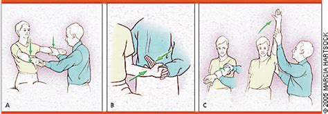 Diagnosing Rotator Cuff Tears - Point-of-Care Guides ...