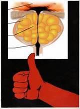 Лечение простатита в домашних условиях таблетками