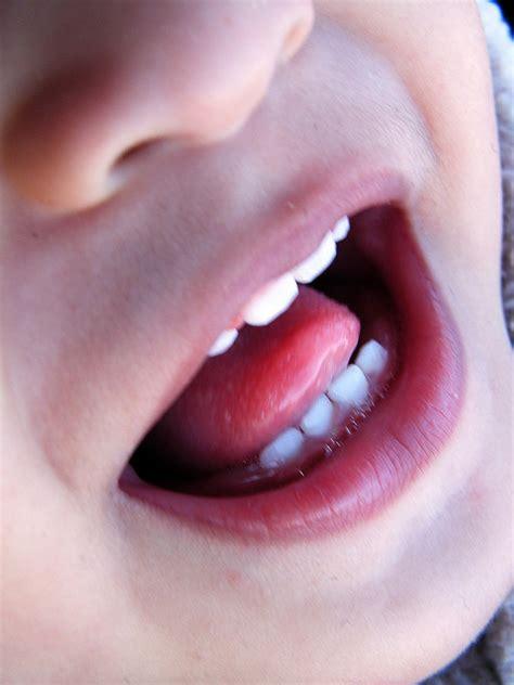 study shows cavities     common childhood