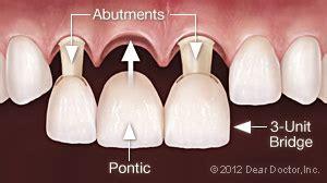 dental bridge general dentist henderson nv densley dental