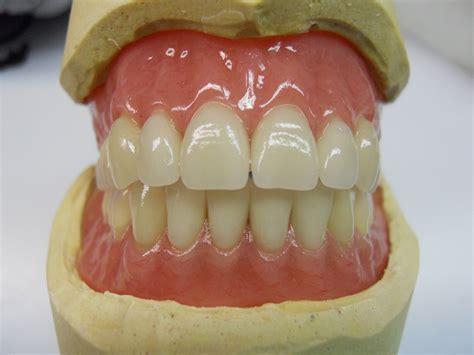 protesi mobile totale laboratorio odontotecnico rovinetti grandi bologna