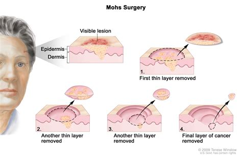 cancertypes skin cancer treatment pdq
