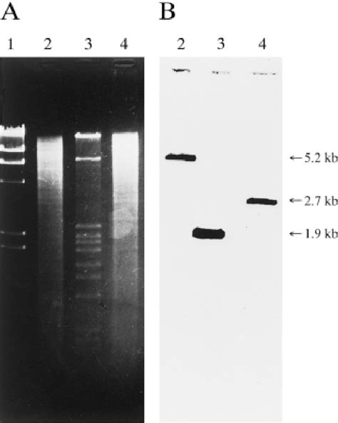(A) Agarose-gel electrophoresis of double digests of S