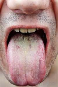 Pictures of Oral Thrush in Mouth
