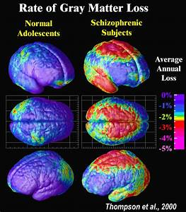 Figure 1  Rates Of Gray Matter Loss In Normal Adolescents