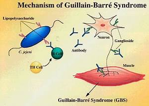 Diseases of Mye... Guillain Barre Syndrome