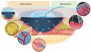 Mechanism Of Action Of Negative Pressure Wound Therapy