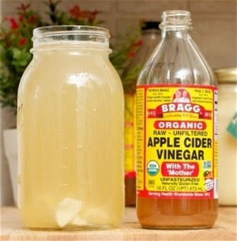 vinegar and water amazing facts about apple cider vinegar for acne