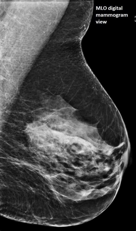 And makes up 15 effects (table 1). Image IQ: 57-year-old with Dense Breasts, Spiculated Mass | Diagnostic Imaging