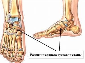 Лечение артроза коксартроза народными средствами