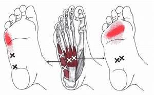 Abductor Digiti Minimi  Foot